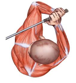 physiogolf